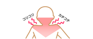 mechanism_img7